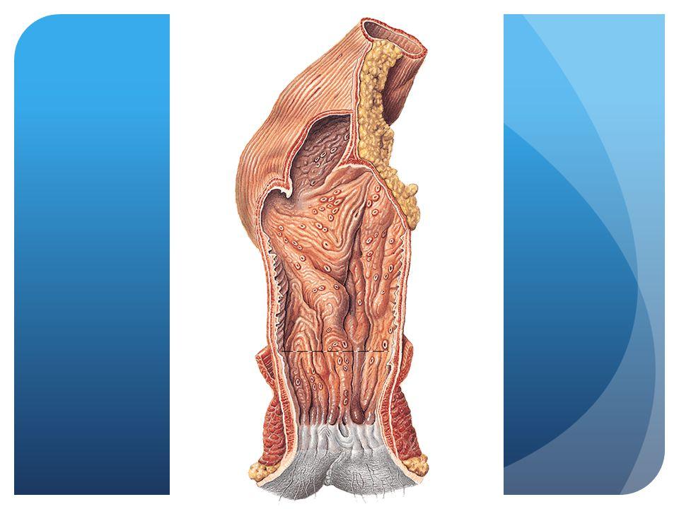 Eindstandig ileostoma  Na subtotale colectomie bij CU of meerdere poliepen
