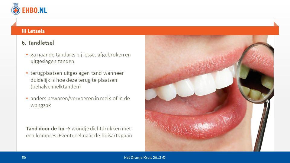 Beeld en tekst gelijk III Letsels Het Oranje Kruis 2013 © 6. Tandletsel • ga naar de tandarts bij losse, afgebroken en uitgeslagen tanden • terugplaat