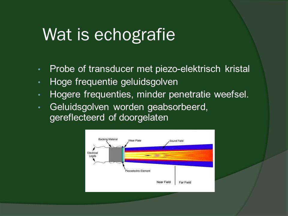 Wat is echografie • Probe of transducer met piezo-elektrisch kristal • Hoge frequentie geluidsgolven • Hogere frequenties, minder penetratie weefsel.