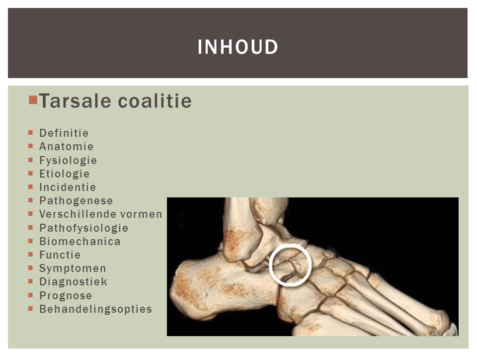 INDELING CALCANEOTALAIRE COALITIES A radiologic classification of talocalcaneal coalitions based on 3D reconstruction Alison Rozansky,1 Eric Varley,2 Molly Moor,1 Dennis R.