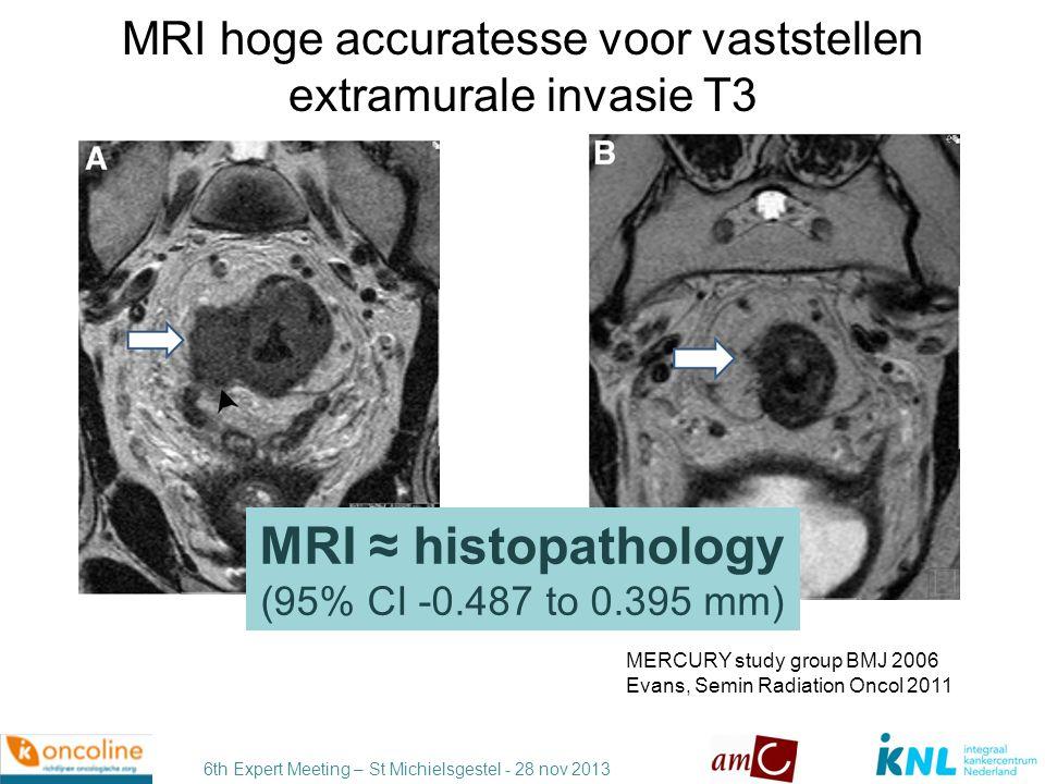 6th Expert Meeting – St Michielsgestel - 28 nov 2013 Pitfalls bij MRI interpretatie desmoplastische reactie Beets-Tan J Magn Res Imaging 2011 pT2 pT3