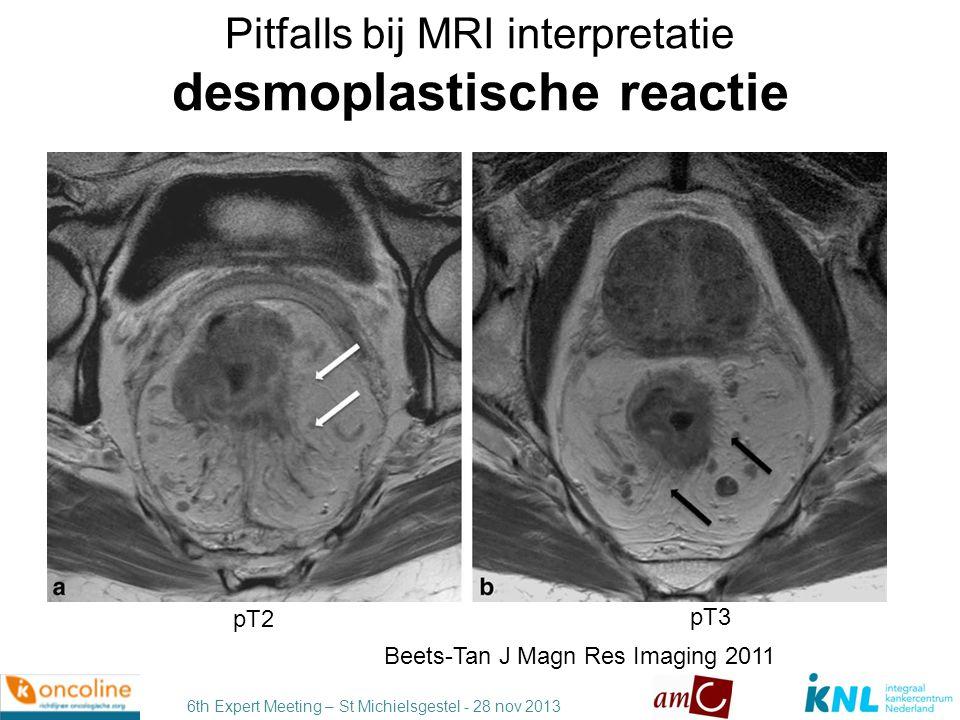 6th Expert Meeting – St Michielsgestel - 28 nov 2013 Extramural invasion ( 5 mm) T3a,b vs T3c – cancer specific survival Merkel, Int J Colorectal Dis 2001 T3 T3a,b T3c