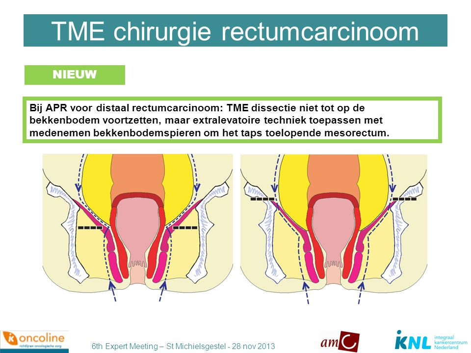 6th Expert Meeting – St Michielsgestel - 28 nov 2013 Extralevatoire vs standaard APR Standard APR N=4147 Extended APR N=1097 P Inadvertent bowel perforation 10.4%4.1%0.004 CRM involvement15.4%9.6%0.022 Local recurrence rate11.9%6.6%P<0.001 Stelzner, Int J Colorectal Dis 2011