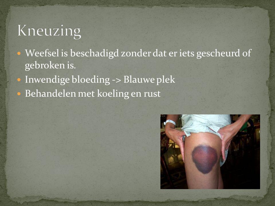  Weefsel is beschadigd zonder dat er iets gescheurd of gebroken is.  Inwendige bloeding -> Blauwe plek  Behandelen met koeling en rust