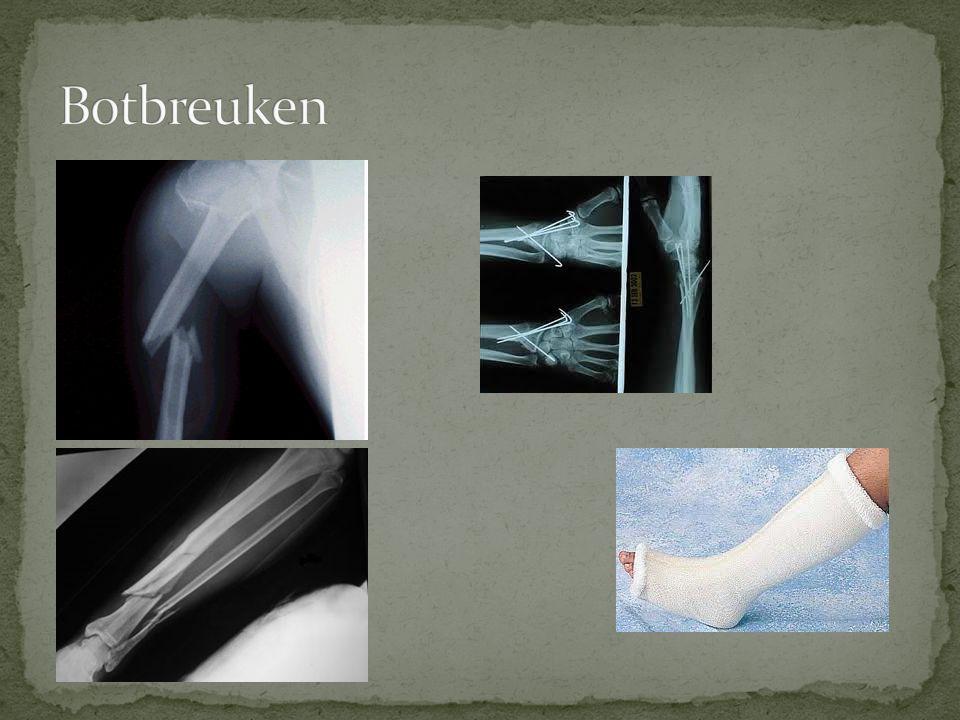  Voetbalknie - Beschadiging van de meniscus - Vaak ook kniebanden/kruisbanden beschadigd