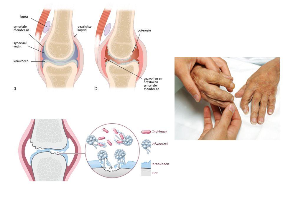 Uitleg aandoeningen Artritis psoratica(Aps)=auto immuunziekte • Pijnlijke ontstekingen in de gewrichten (vaak niet symetrisch) o.a aan laatste vinger-en teengewrichtjes • Een pijnlijke nek en (onder)rug • Overmatige vermoeidheid • Verandering aan de nagels • Huidziekte Psoriasis gevoeligheid bij zo'n 20 % Schilfering,jeuk en roodheid van de huid