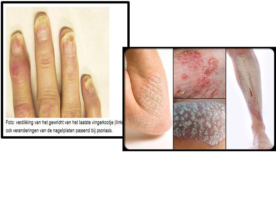 Ziekte van Bechterew Spondylitis Ankylopoetica (S.A) Ontstekingen beginnen in de onderste delen van de wervelkolom hierdoor stijfheid en rugpijn • Ontstekingen in de ogen en in zeldzame gevallen kan ook de aorta ontsteken • Vergrote kans op : Colitis ulserosa Ziekte van Crohn >inflammatoire darmziekten • Genetisch verband > deze 2 ziekten en gewrichts- onstekingen steeds meer onderbouwing/studies