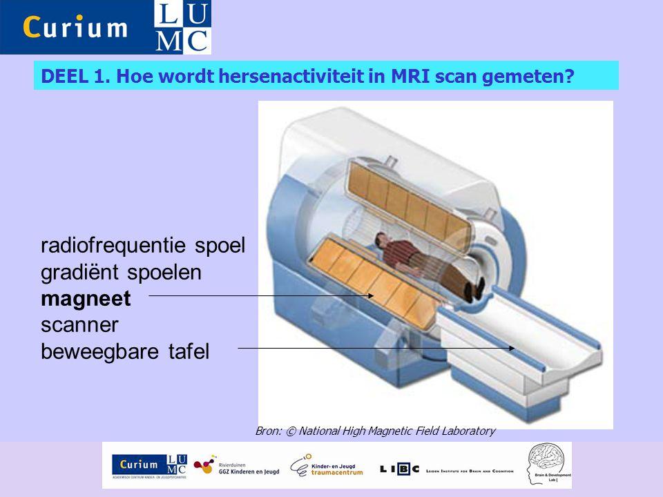 DEEL 1. Hoe wordt hersenactiviteit in MRI scan gemeten? radiofrequentie spoel gradiënt spoelen magneet scanner beweegbare tafel Bron: © National High