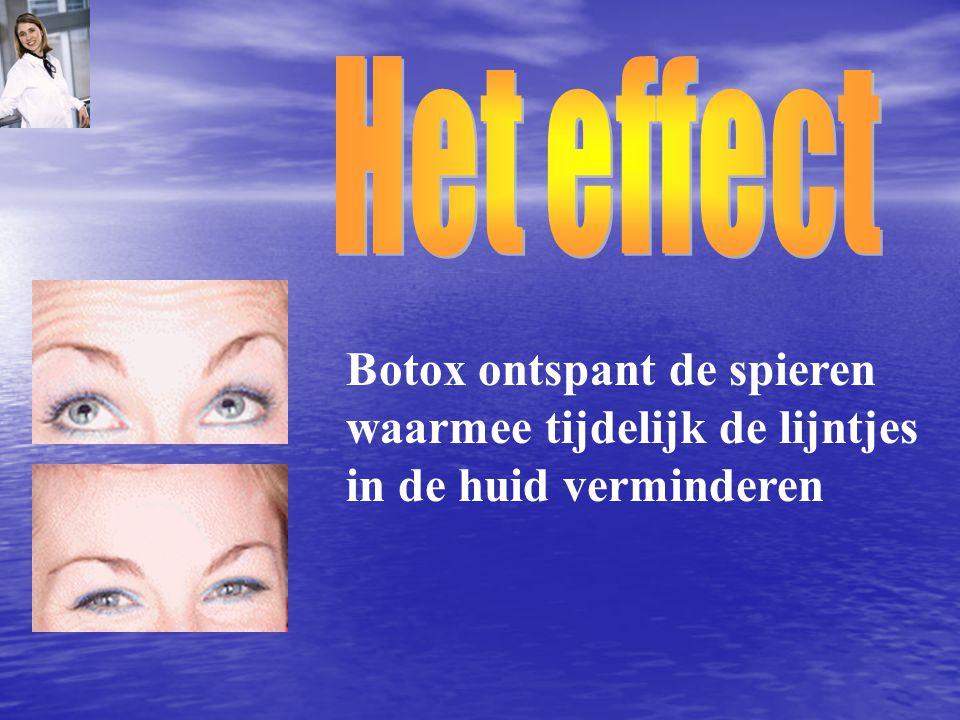 Botox ontspant de spieren waarmee tijdelijk de lijntjes in de huid verminderen