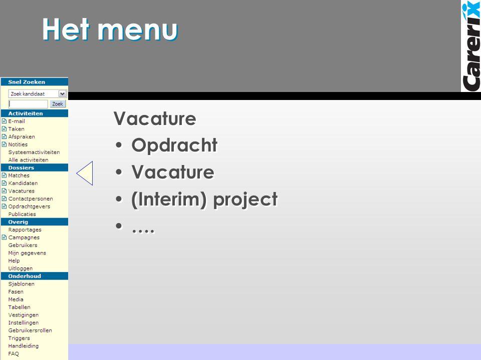 Het menu Vacature • Opdracht • Vacature • (Interim) project • ….