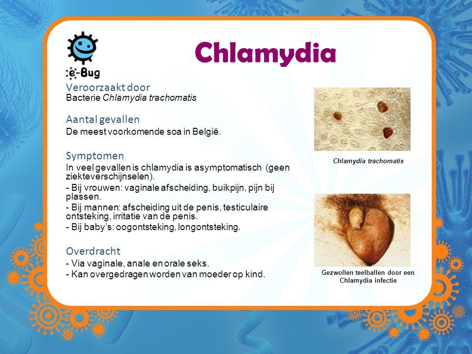 Chlamydia Veroorzaakt door Bacterie Chlamydia trachomatis Aantal gevallen De meest voorkomende soa in België. Symptomen In veel gevallen is chlamydia