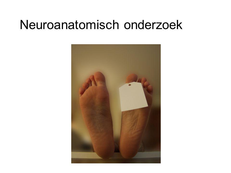 Neuroanatomisch onderzoek