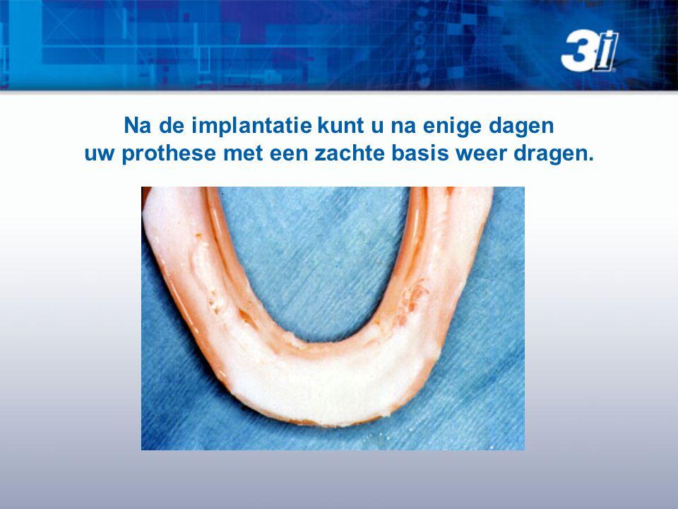 Na de implantatie kunt u na enige dagen uw prothese met een zachte basis weer dragen.