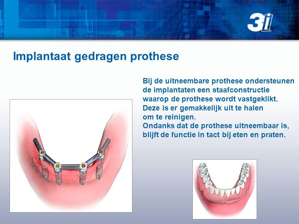Bij de uitneembare prothese ondersteunen de implantaten een staafconstructie waarop de prothese wordt vastgeklikt.