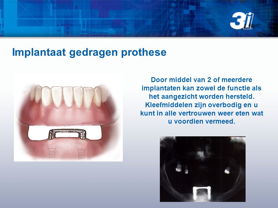 Door middel van 2 of meerdere implantaten kan zowel de functie als het aangezicht worden hersteld. Kleefmiddelen zijn overbodig en u kunt in alle vert