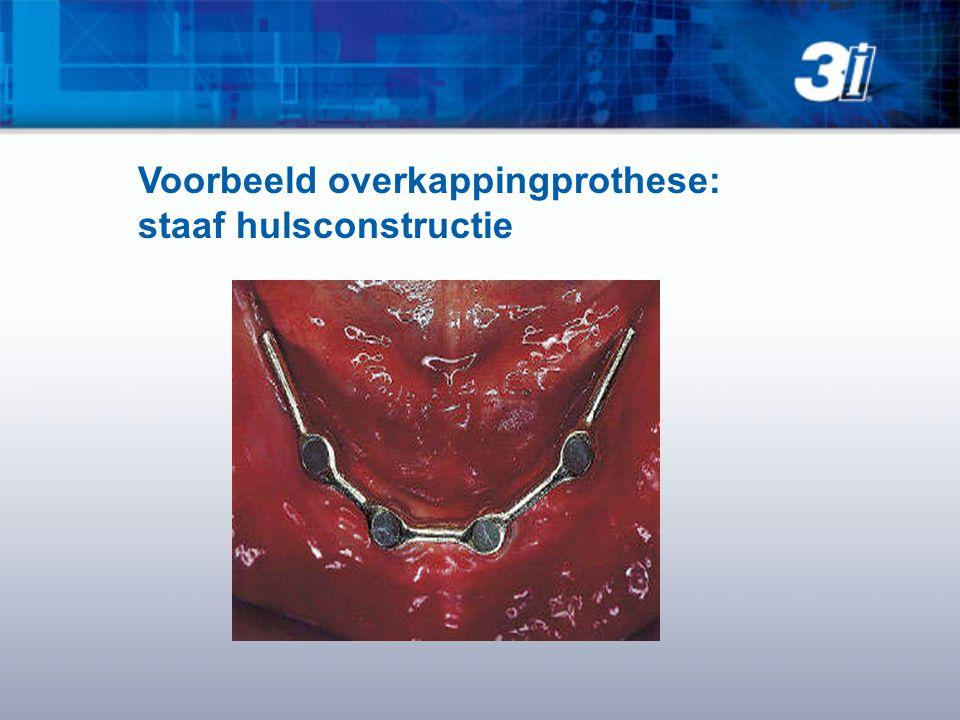 Voorbeeld overkappingprothese: staaf hulsconstructie