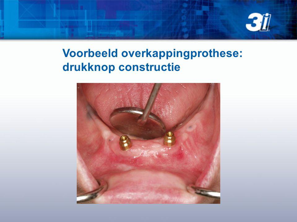 Voorbeeld overkappingprothese: drukknop constructie