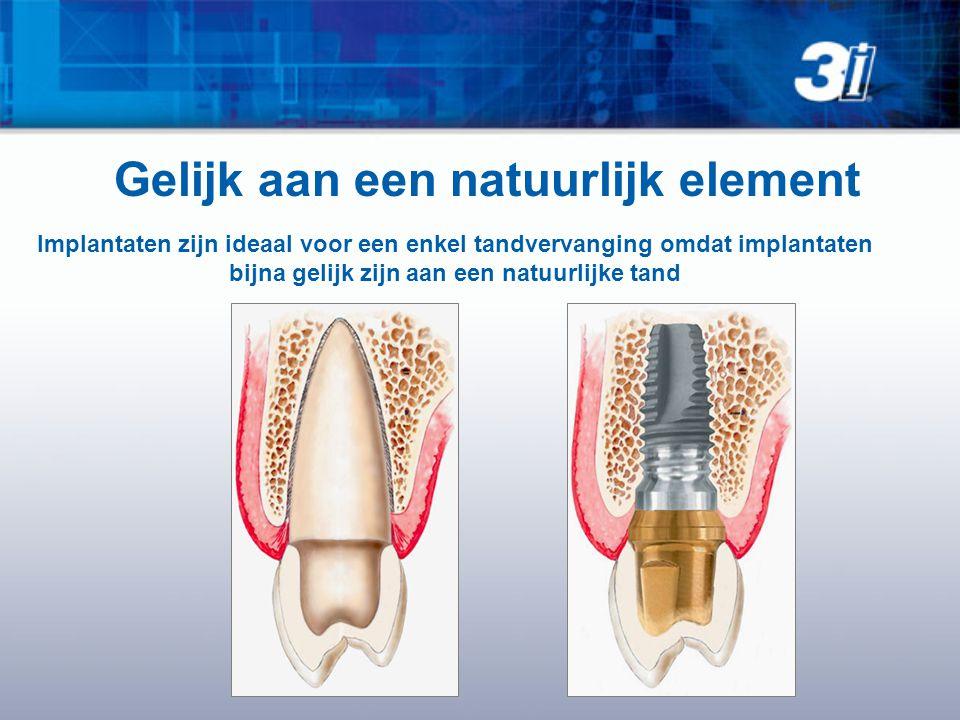 Gelijk aan een natuurlijk element Implantaten zijn ideaal voor een enkel tandvervanging omdat implantaten bijna gelijk zijn aan een natuurlijke tand