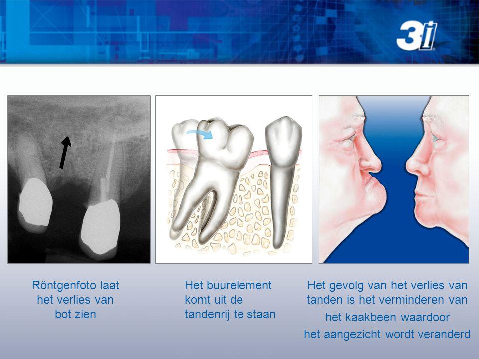 Röntgenfoto laat het verlies van bot zien Het buurelement komt uit de tandenrij te staan Het gevolg van het verlies van tanden is het verminderen van het kaakbeen waardoor het aangezicht wordt veranderd