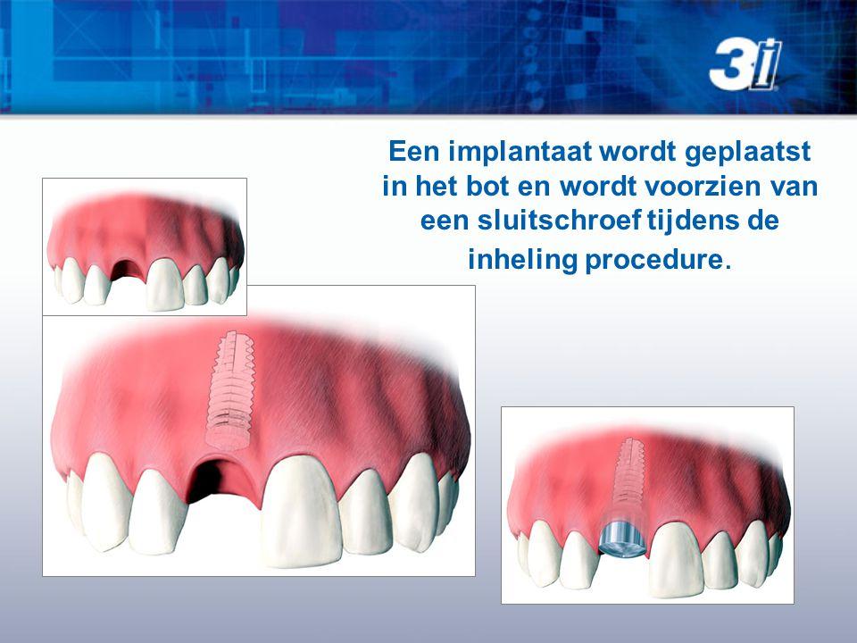 Een implantaat wordt geplaatst in het bot en wordt voorzien van een sluitschroef tijdens de inheling procedure.