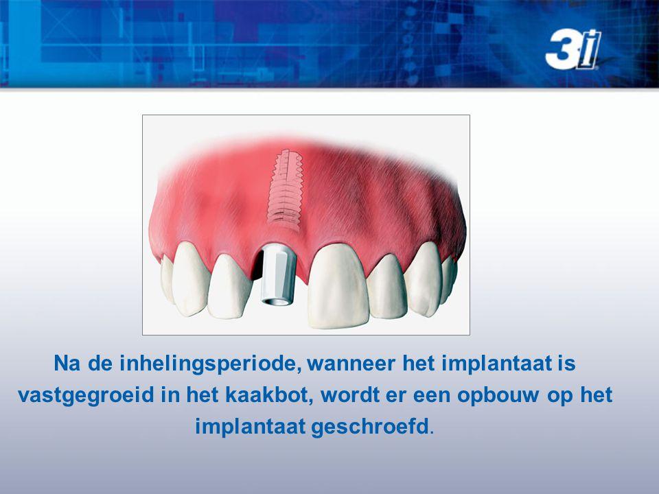 Na de inhelingsperiode, wanneer het implantaat is vastgegroeid in het kaakbot, wordt er een opbouw op het implantaat geschroefd.