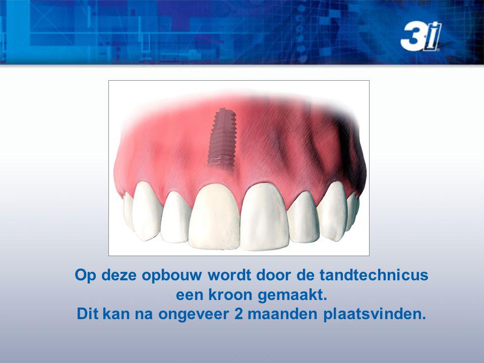 Op deze opbouw wordt door de tandtechnicus een kroon gemaakt. Dit kan na ongeveer 2 maanden plaatsvinden.