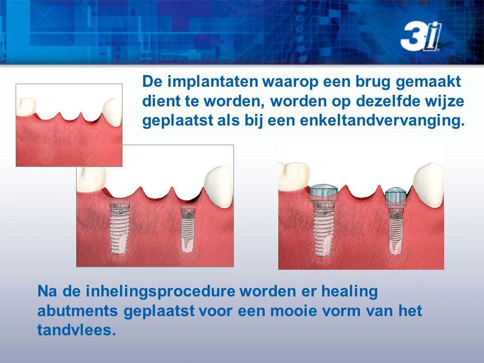 Na de inhelingsprocedure worden er healing abutments geplaatst voor een mooie vorm van het tandvlees. De implantaten waarop een brug gemaakt dient te