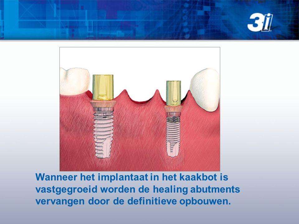 Wanneer het implantaat in het kaakbot is vastgegroeid worden de healing abutments vervangen door de definitieve opbouwen.