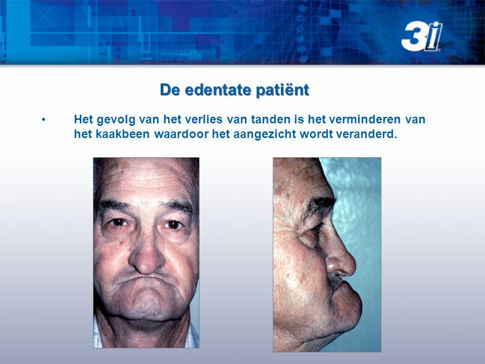 De edentate patiënt •Het gevolg van het verlies van tanden is het verminderen van het kaakbeen waardoor het aangezicht wordt veranderd.