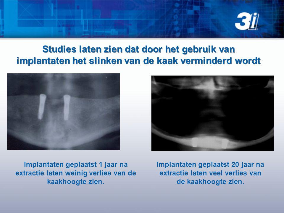 Implantaten geplaatst 1 jaar na extractie laten weinig verlies van de kaakhoogte zien. Studies laten zien dat door het gebruik van implantaten het sli