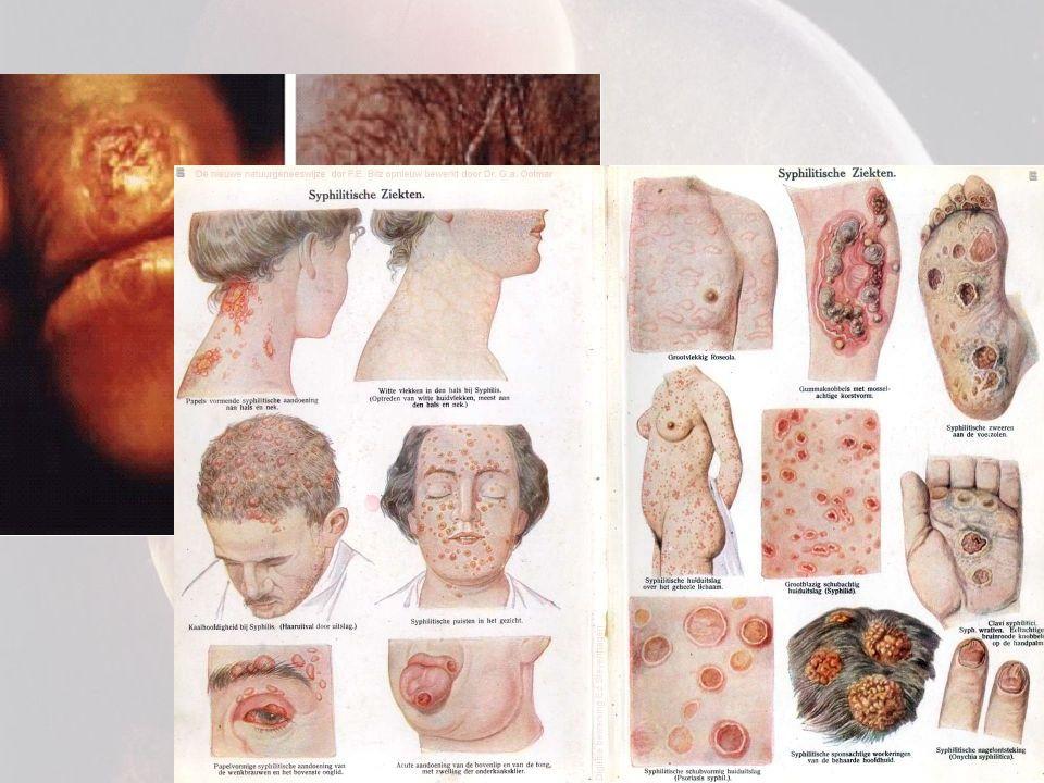Chlamydia • Soms waterige afscheiding urinebuis of vagina • Ontsteking baarmoeder of urinebuis • Vaak ook geen verschijnselen • Behandeling door penicilline • Bij geen behandeling: ontsteking kan zich uitbreiden -> onvruchtbaarheid