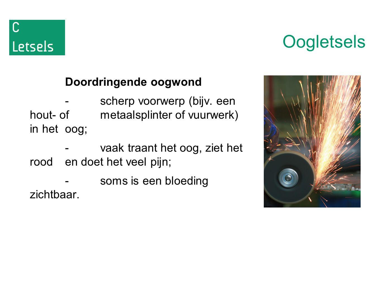 Oogletsels Doordringende oogwond -scherp voorwerp (bijv. een hout- of metaalsplinter of vuurwerk) in het oog; -vaak traant het oog, ziet het rood en d