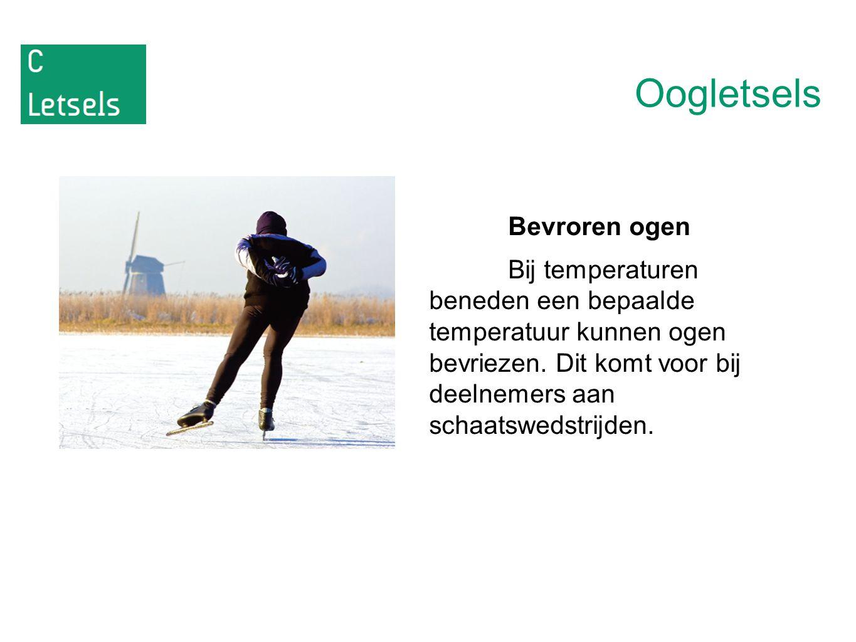 Oogletsels Bevroren ogen Bij temperaturen beneden een bepaalde temperatuur kunnen ogen bevriezen. Dit komt voor bij deelnemers aan schaatswedstrijden.