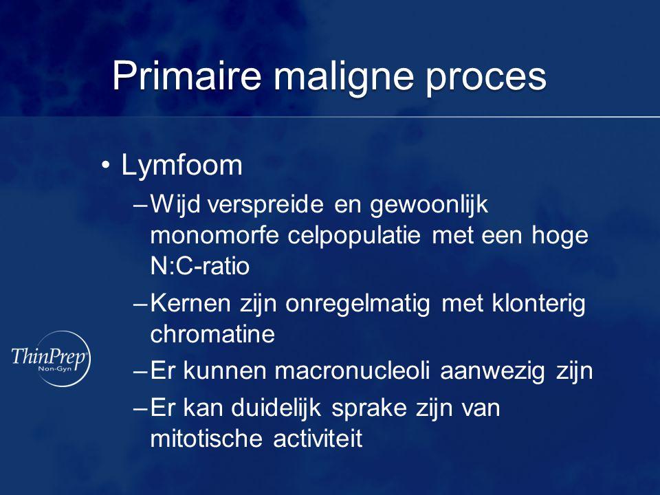 Primaire maligne proces •Lymfoom –Wijd verspreide en gewoonlijk monomorfe celpopulatie met een hoge N:C-ratio –Kernen zijn onregelmatig met klonterig chromatine –Er kunnen macronucleoli aanwezig zijn –Er kan duidelijk sprake zijn van mitotische activiteit