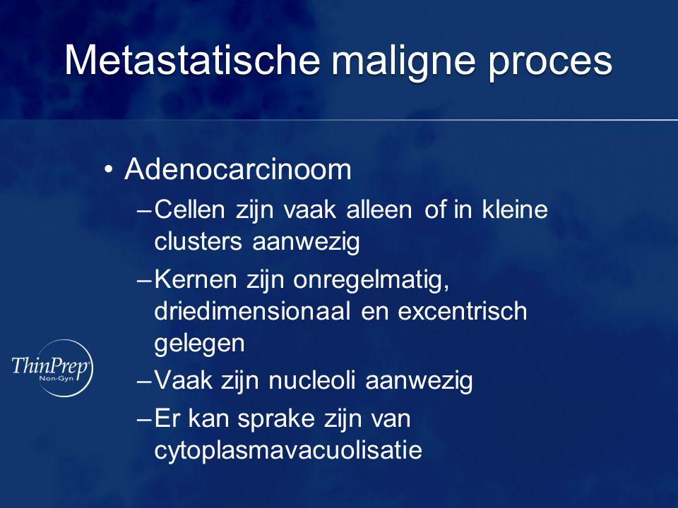 Metastatische maligne proces •Adenocarcinoom –Cellen zijn vaak alleen of in kleine clusters aanwezig –Kernen zijn onregelmatig, driedimensionaal en excentrisch gelegen –Vaak zijn nucleoli aanwezig –Er kan sprake zijn van cytoplasmavacuolisatie