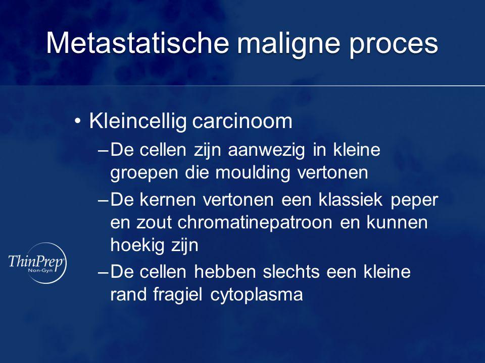 Metastatische maligne proces •Kleincellig carcinoom –De cellen zijn aanwezig in kleine groepen die moulding vertonen –De kernen vertonen een klassiek peper en zout chromatinepatroon en kunnen hoekig zijn –De cellen hebben slechts een kleine rand fragiel cytoplasma
