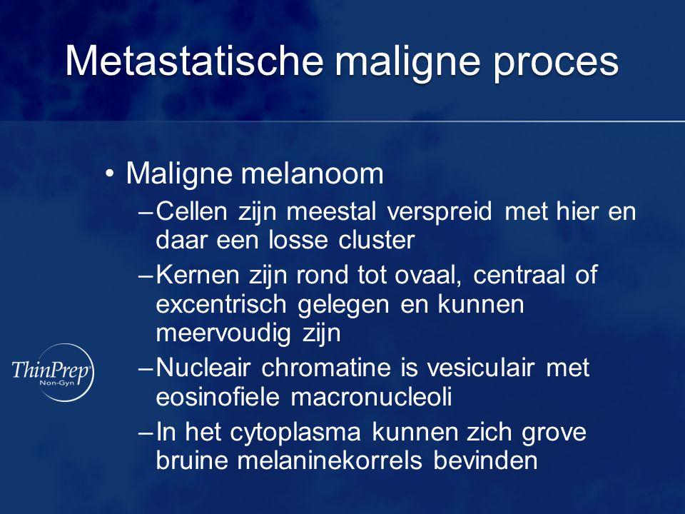 Metastatische maligne proces •Maligne melanoom –Cellen zijn meestal verspreid met hier en daar een losse cluster –Kernen zijn rond tot ovaal, centraal of excentrisch gelegen en kunnen meervoudig zijn –Nucleair chromatine is vesiculair met eosinofiele macronucleoli –In het cytoplasma kunnen zich grove bruine melaninekorrels bevinden