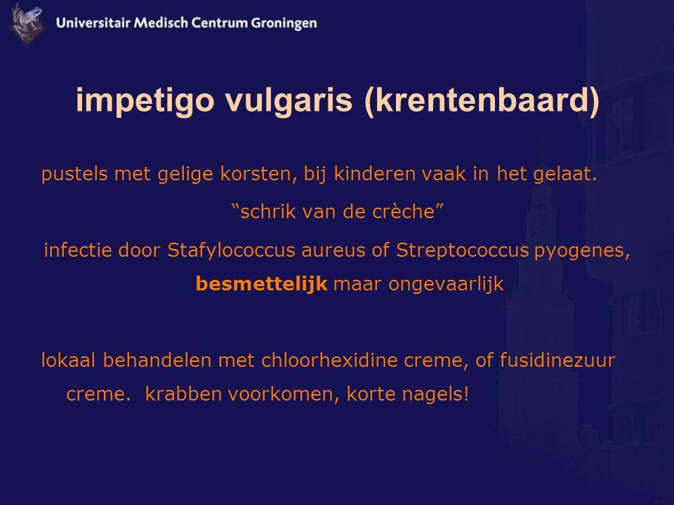 """impetigo vulgaris (krentenbaard) pustels met gelige korsten, bij kinderen vaak in het gelaat. """"schrik van de crèche"""" infectie door Stafylococcus aureu"""