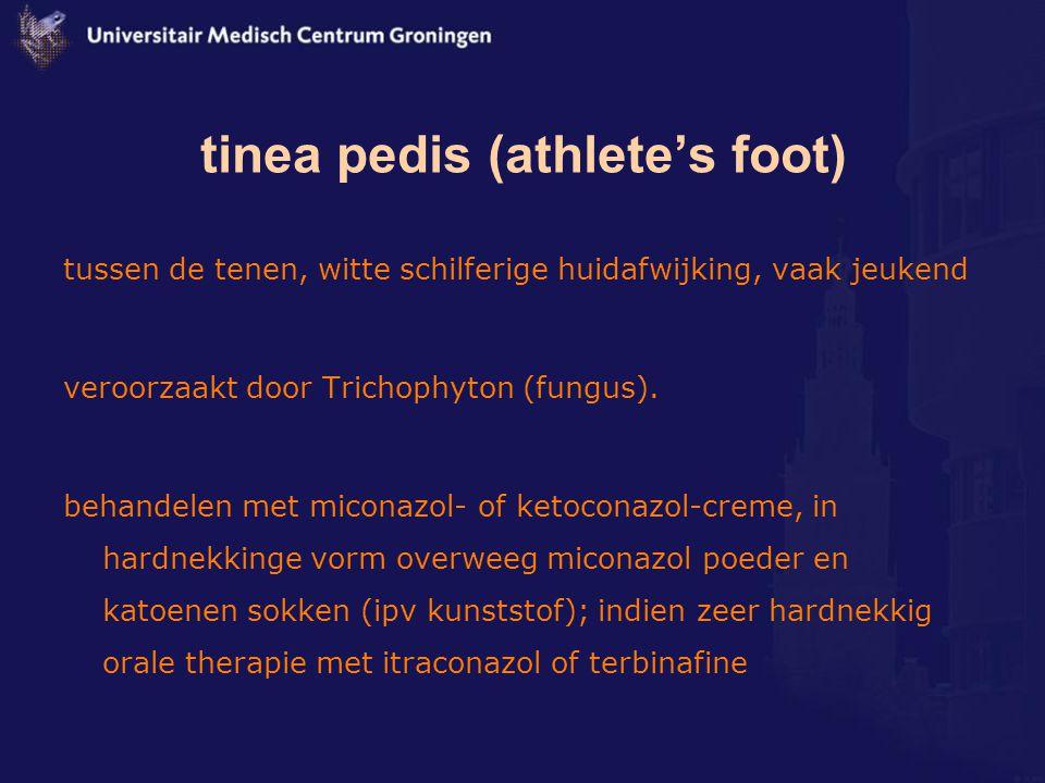 tinea pedis (athlete's foot) tussen de tenen, witte schilferige huidafwijking, vaak jeukend veroorzaakt door Trichophyton (fungus). behandelen met mic