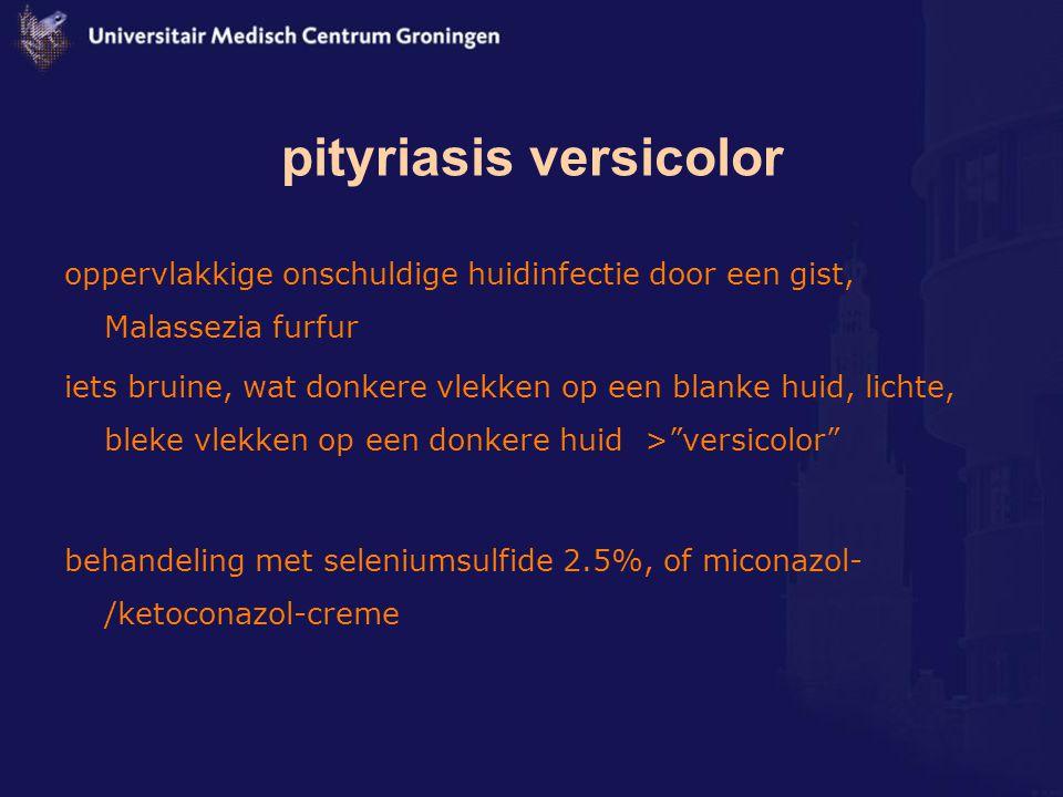 pityriasis versicolor oppervlakkige onschuldige huidinfectie door een gist, Malassezia furfur iets bruine, wat donkere vlekken op een blanke huid, lic