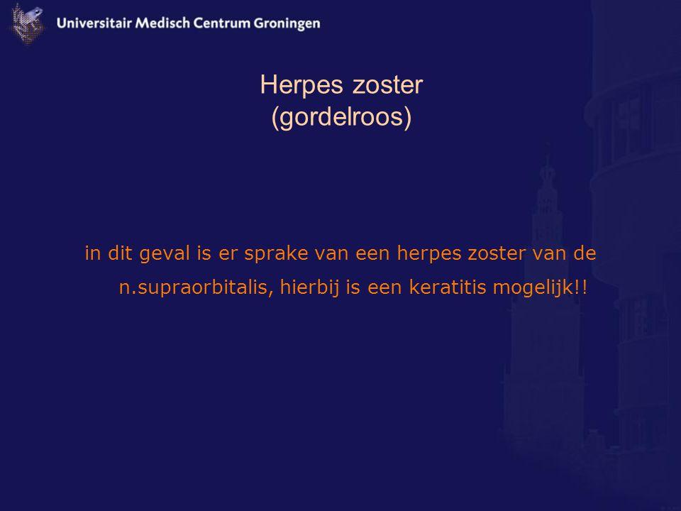 Herpes zoster (gordelroos) in dit geval is er sprake van een herpes zoster van de n.supraorbitalis, hierbij is een keratitis mogelijk!!