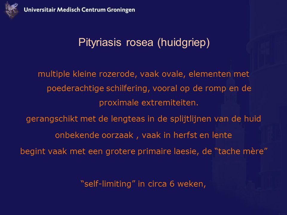 Pityriasis rosea (huidgriep) multiple kleine rozerode, vaak ovale, elementen met poederachtige schilfering, vooral op de romp en de proximale extremit