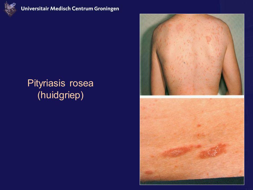 Pityriasis rosea (huidgriep)