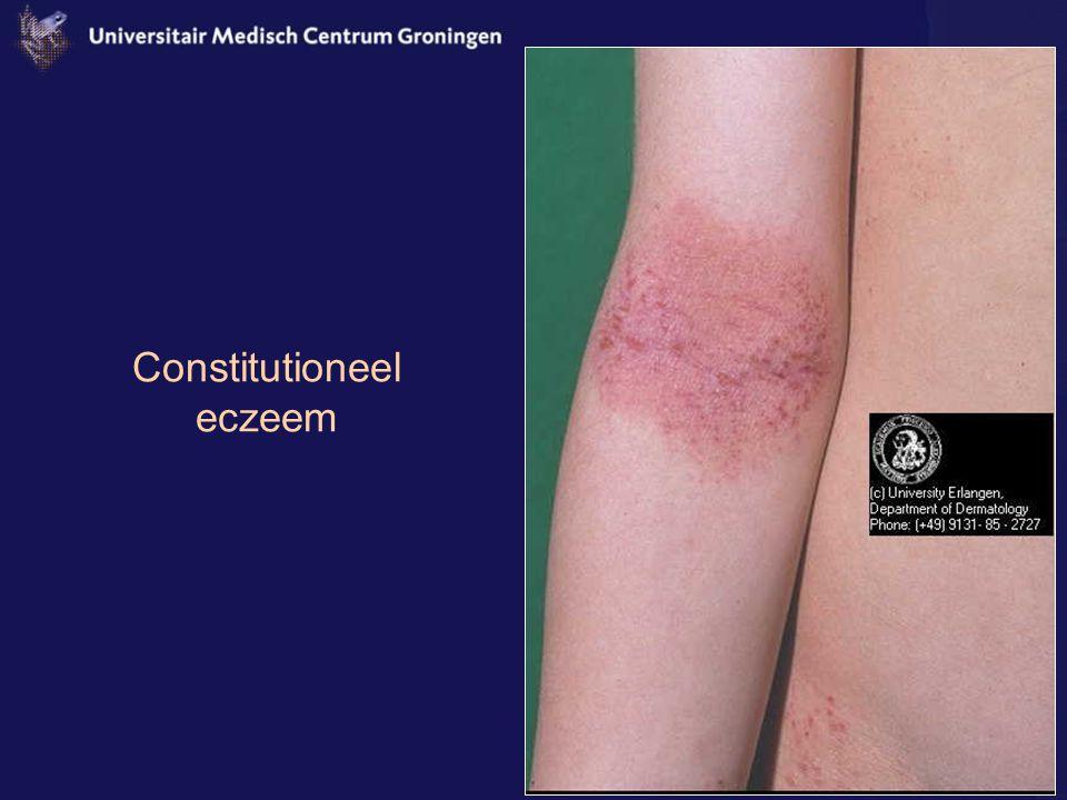 Constitutioneel eczeem