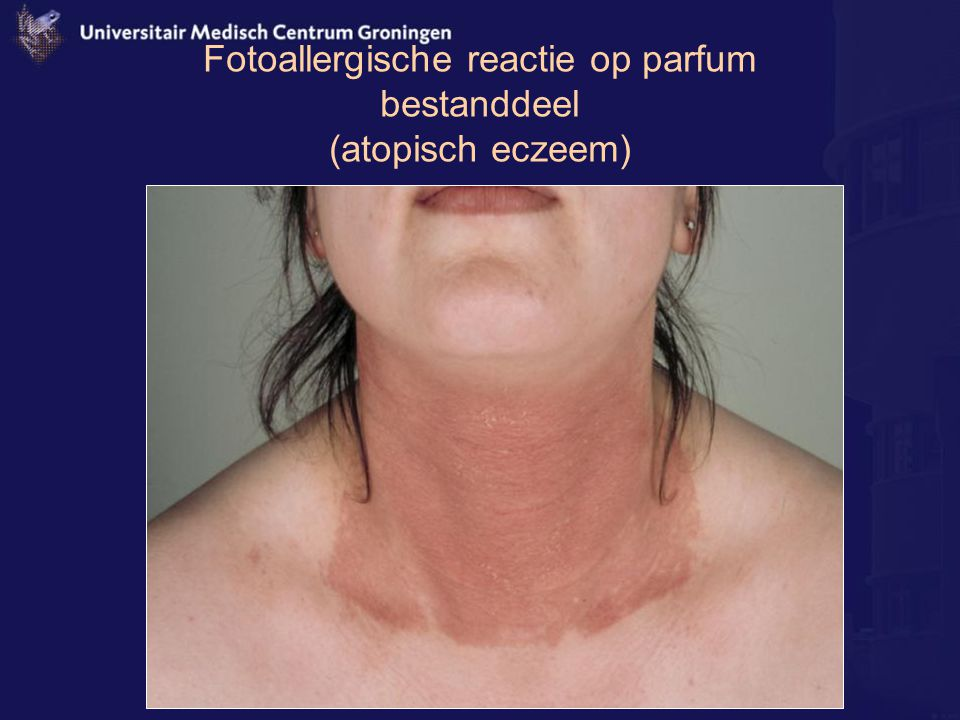 Fotoallergische reactie op parfum bestanddeel (atopisch eczeem)