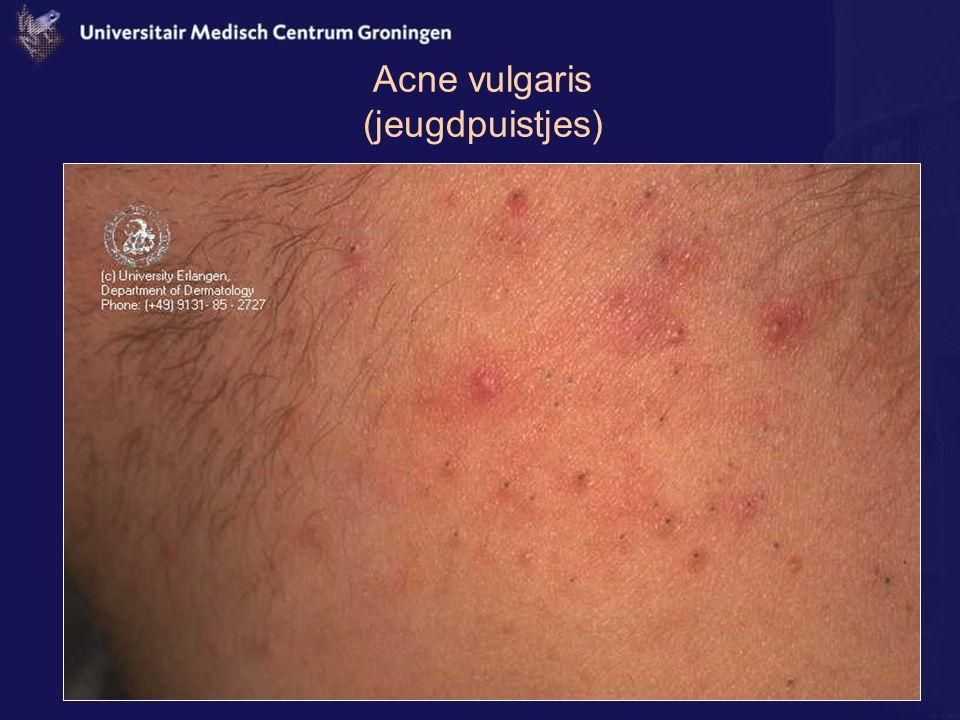 Acne vulgaris (jeugdpuistjes)