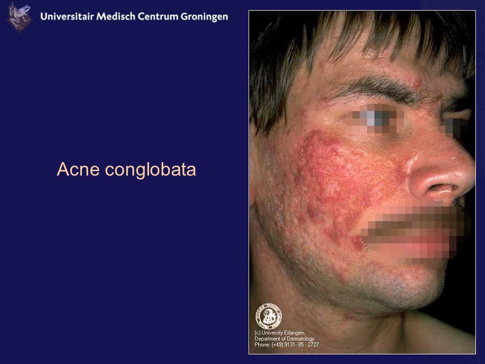 Acne conglobata