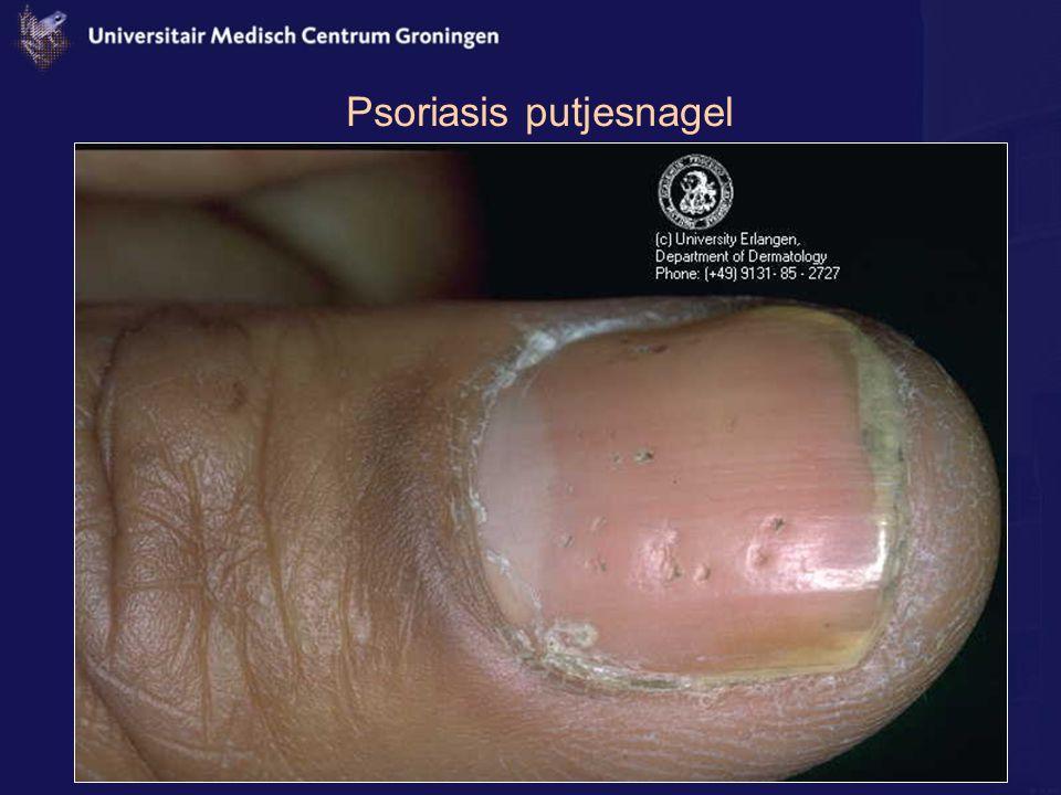 Psoriasis putjesnagel