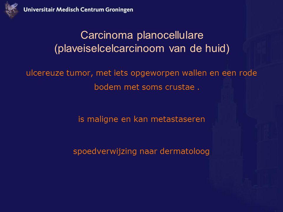 Carcinoma planocellulare (plaveiselcelcarcinoom van de huid) ulcereuze tumor, met iets opgeworpen wallen en een rode bodem met soms crustae. is malign
