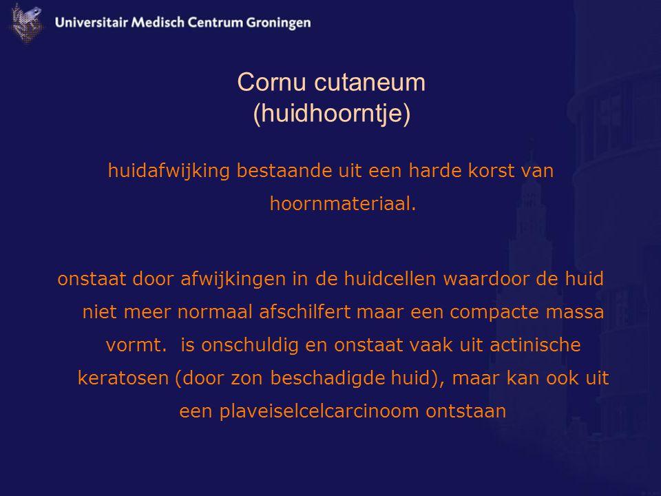 Cornu cutaneum (huidhoorntje) huidafwijking bestaande uit een harde korst van hoornmateriaal. onstaat door afwijkingen in de huidcellen waardoor de hu